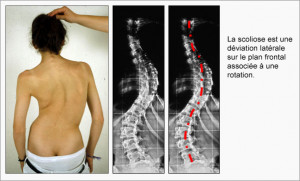 Scoliosis_Fig03_fr